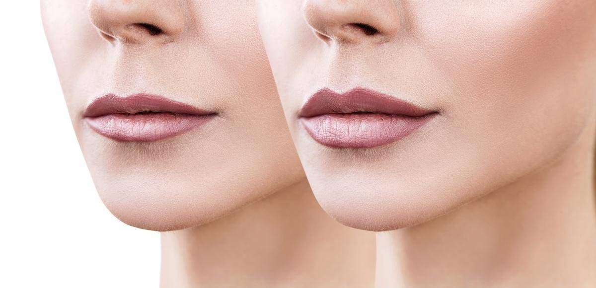 The Smart Beauty Guide to Lip Injections