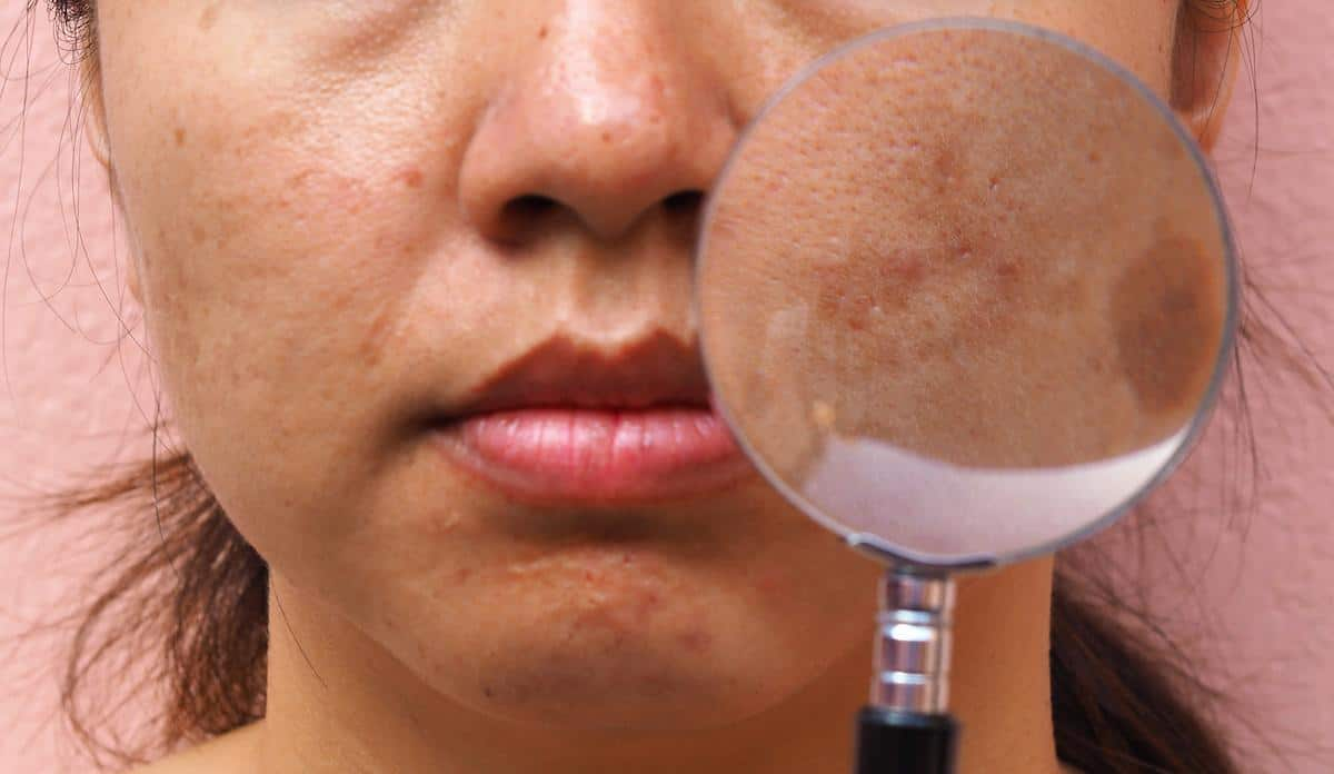 How to Recognize and Treat Melasma