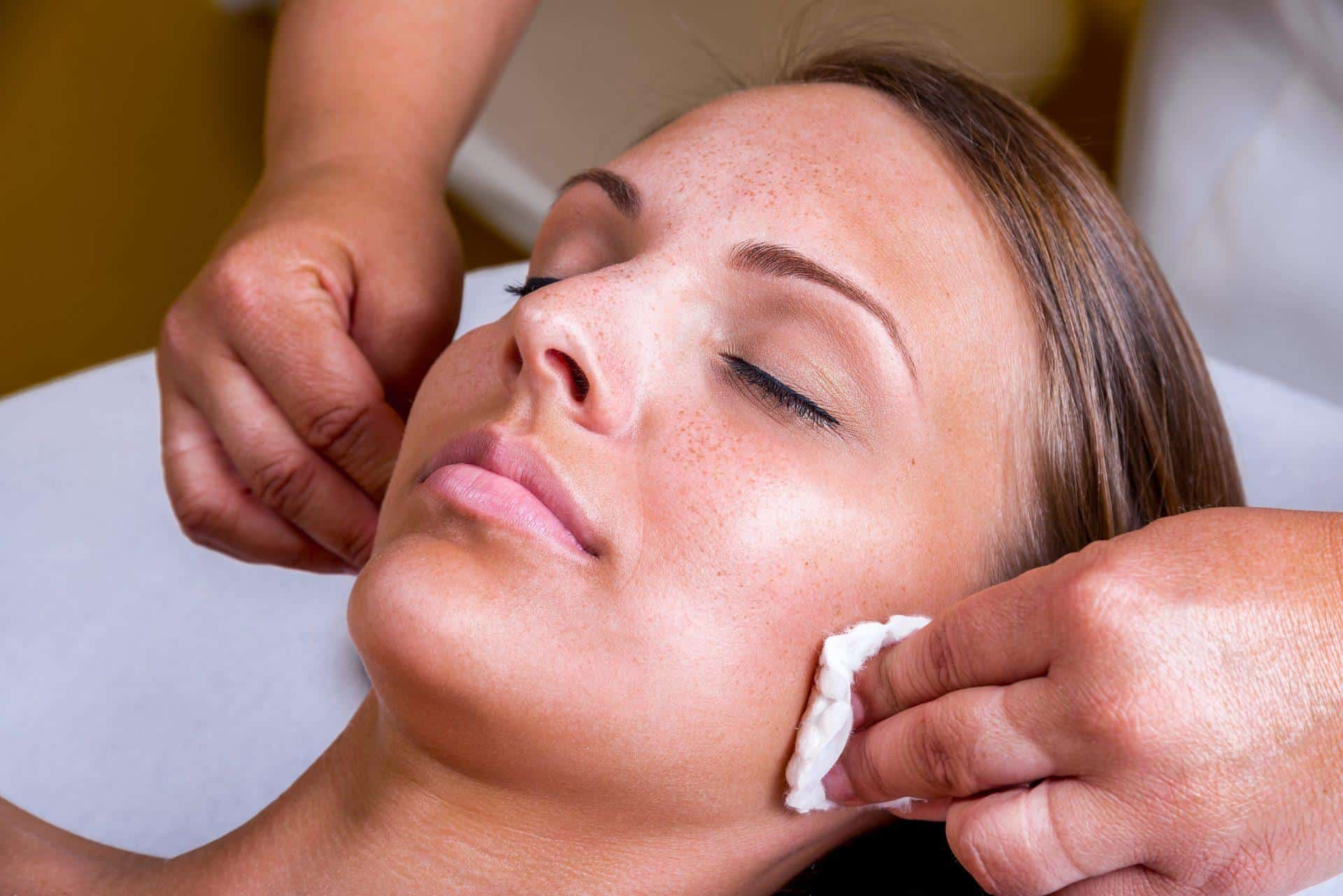 What Is a Chemical Peel