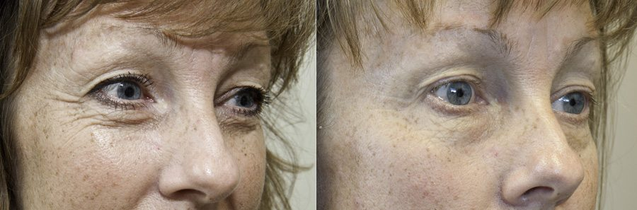 The Awe-Mazing Results From Exilis Ultra