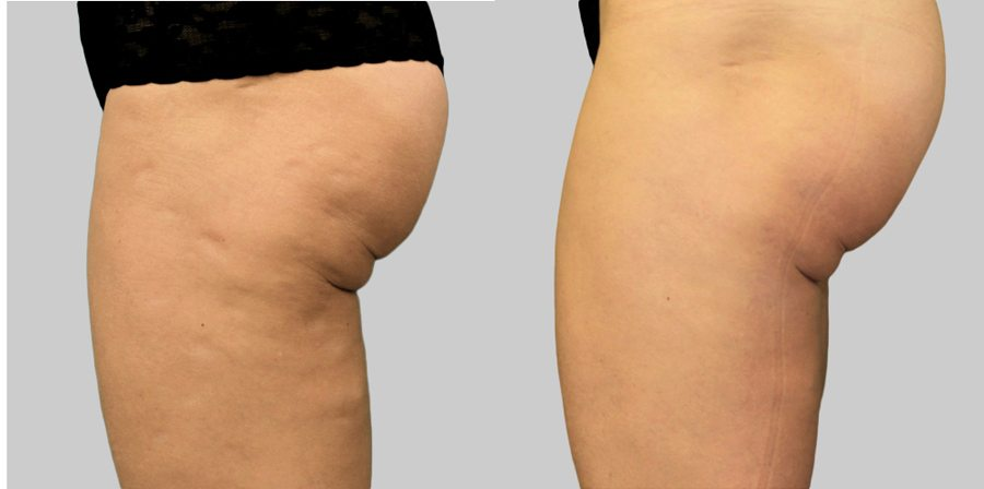 Exilis Ultra Skin Tightening Dermacare Hr