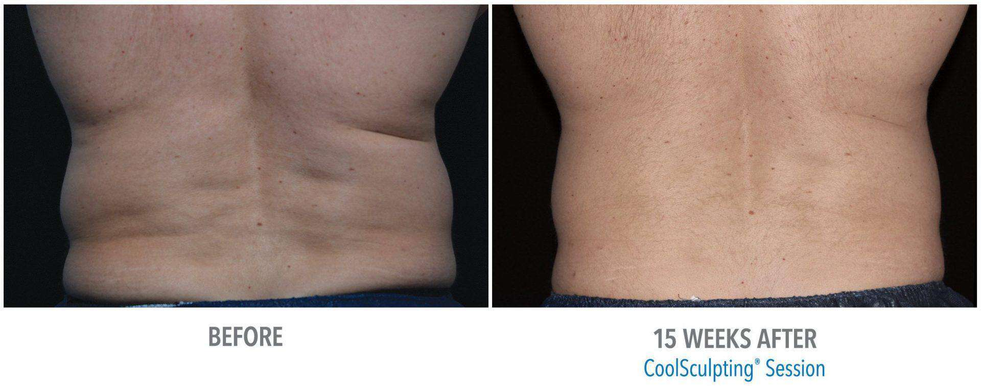 3 Things You Need To Know About Coolsculpting Side Effects