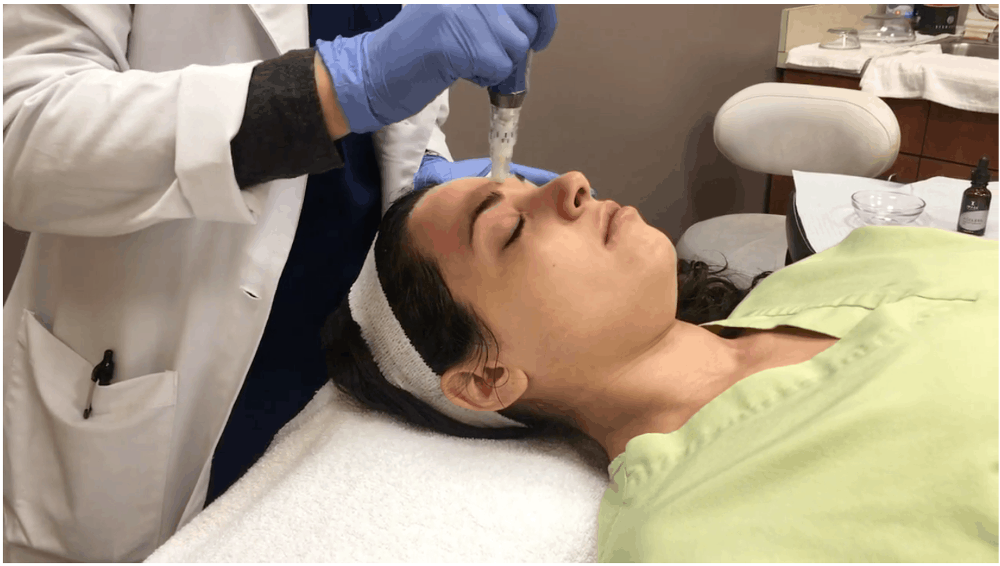 Benefits of SkinPen Microneedling