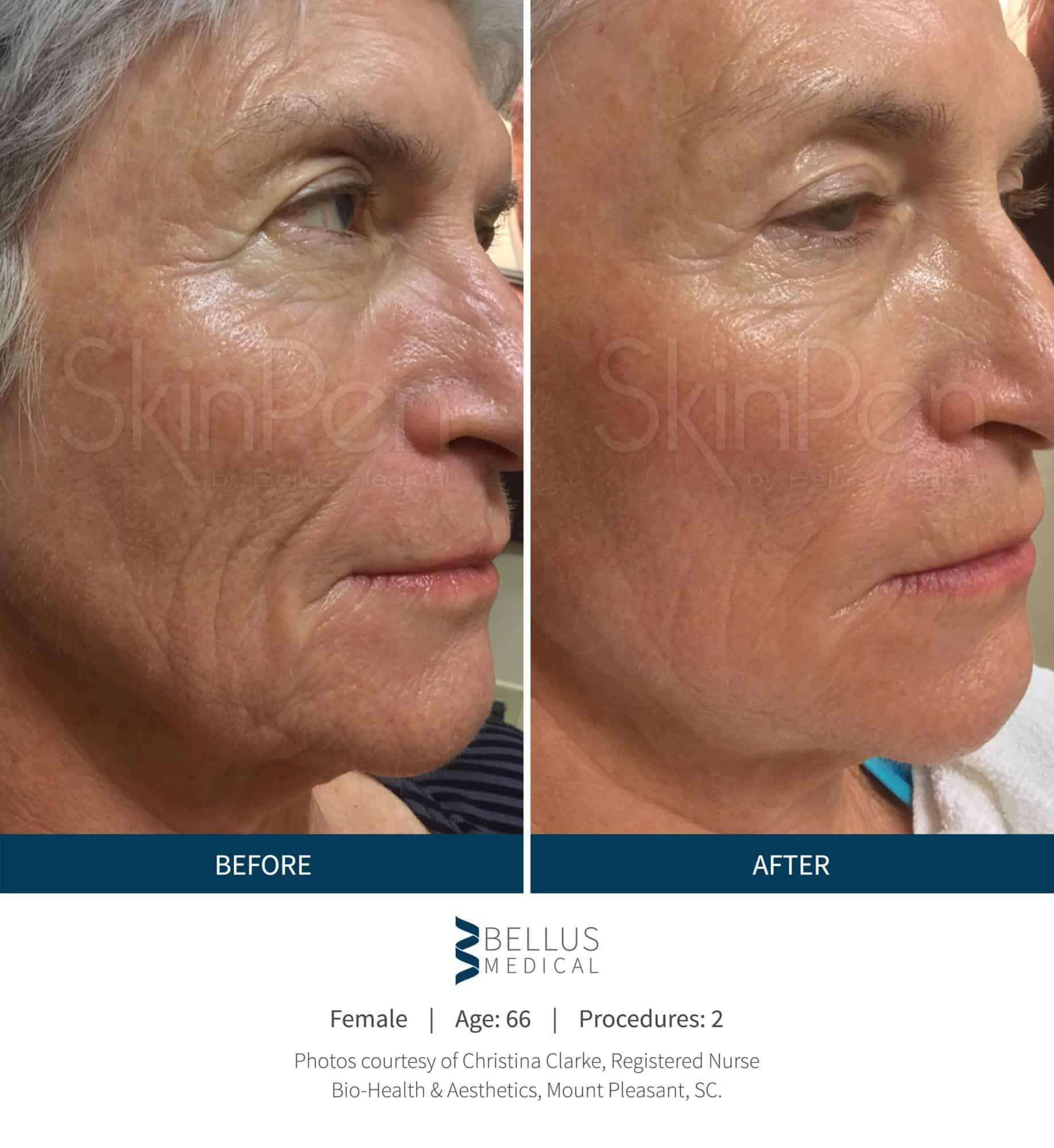 Best Natural Treatment For Deep Wrinkles