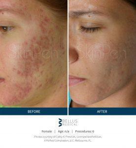 SkinPen Procedure